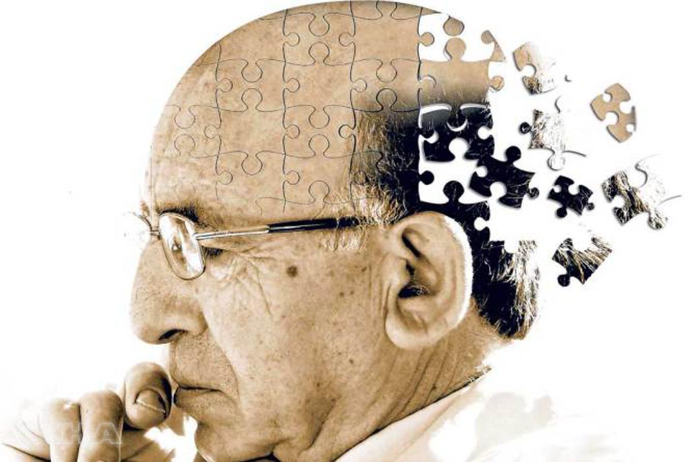 Alzheimer'dan ölen yaşlı sayısı artı
